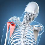 Shoulder Joint Impingement Treatment LA