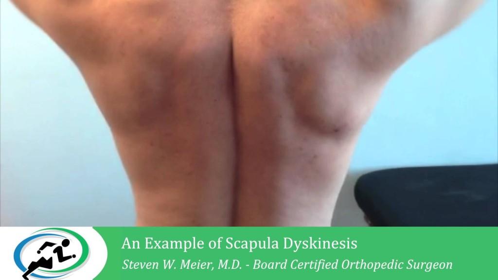 Minimally Invasive Shoulder Surgery LA