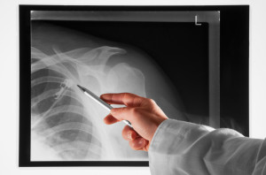 doctor checking a shoulder x ray