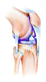 Osteoarthritis Injection Therapy in LA